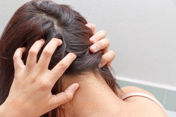 頭皮が痒い女性