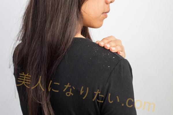 脂漏性皮膚炎原因とその症状