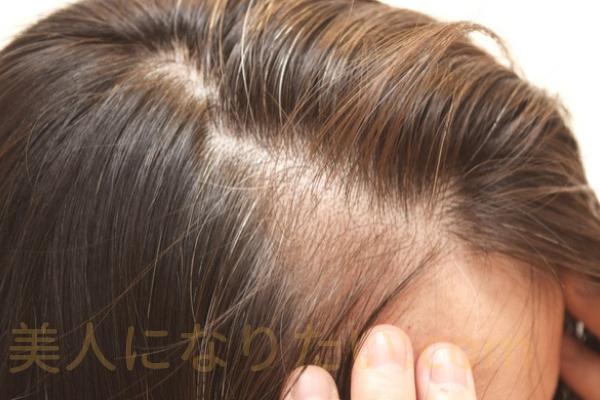 頭皮環境正常化