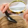 女性の脂漏性皮膚炎に効くシャンプーの選び方│原因と改善法について